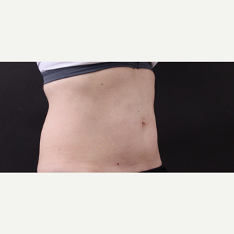49 year old woman treated with CoolSculpting before 3630300