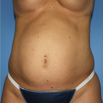 35-44 year old woman treated with Tummy Tuck before 3069749