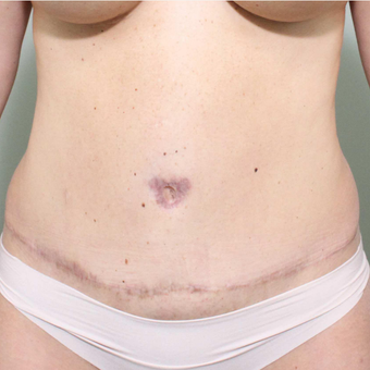 35-44 year old woman treated with Tummy Tuck after 3069749