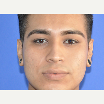 18-24 year old man treated with Restylane after 3225687