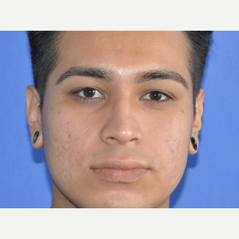 18-24 year old man treated with Restylane before 3225687