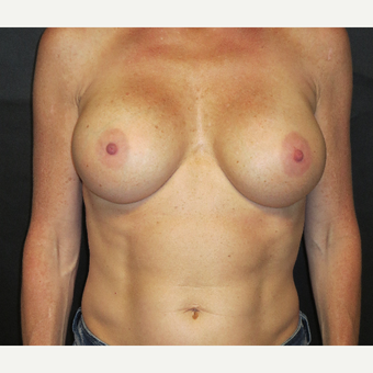 35-44 year old woman treated with Breast Implant Revision after 3367015