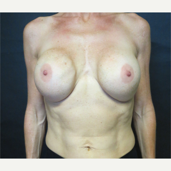 35-44 year old woman treated with Breast Implant Revision before 3367015