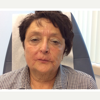 65-74 year old woman treated with Botox, Juvederm, ProFractional Laser and BBL within 2 years time before 3056115