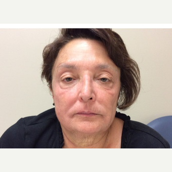 65-74 year old woman treated with Botox, Juvederm, ProFractional Laser and BBL within 2 years time after 3056115