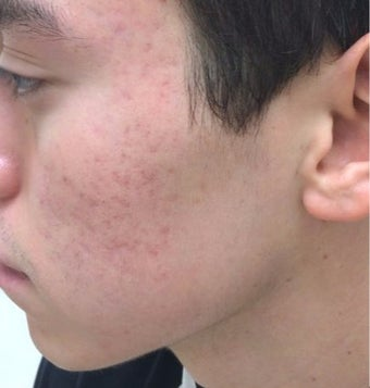 18-24 year old man treated with Acne Scars Treatment before 2930015