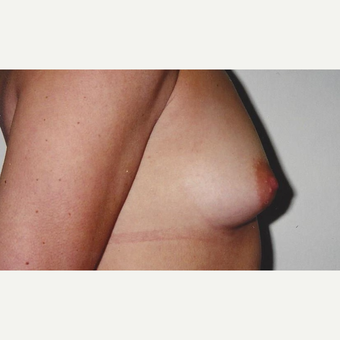 25-34 year old woman treated with Breast Augmentation before 3629426
