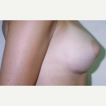 25-34 year old woman treated with Breast Augmentation after 3629426