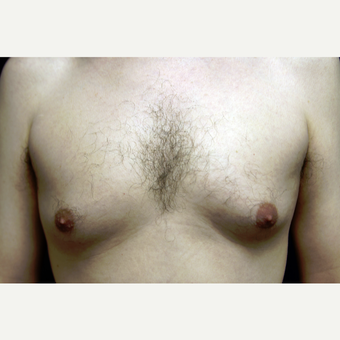 31 year old man treated for gynecomastia with liposuction before 3419132