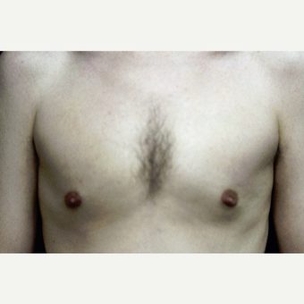 31 year old man treated for gynecomastia with liposuction after 3419132