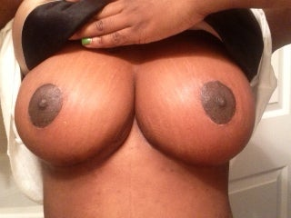 35 yo woman who underwent UBL with no breast implants after 1274793