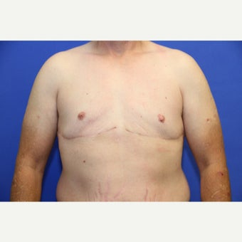 46 year old transgender man treated with FTM Chest Masculinization Surgery after 2141189