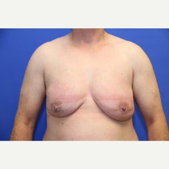 46 year old transgender man treated with FTM Chest Masculinization Surgery before 2141189