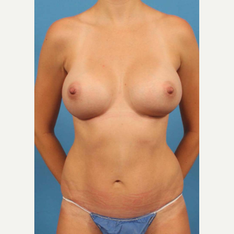 25-34 year old woman treated with Breast Augmentation after 3787177