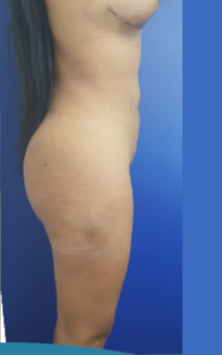 25-34 year old woman treated with Liposculpture after 3650026