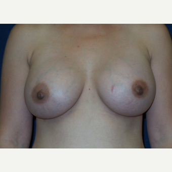 25-34 year old woman treated with Ideal Implant after 3407403