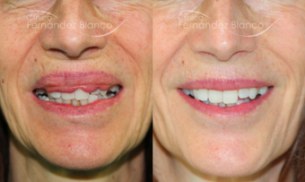 45-54 year old woman treated with Lip Reduction before 2403748