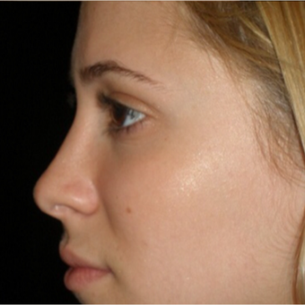 Scarless Closed Rhinoplasty after 3586266