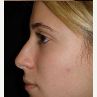 Scarless Closed Rhinoplasty before 3586266