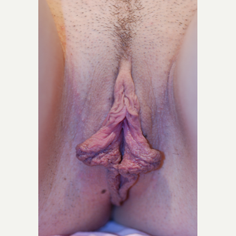 18-24 year old woman treated with Labiaplasty before 3621846