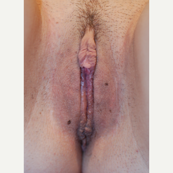 18-24 year old woman treated with Labiaplasty after 3621846