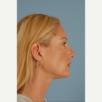 35-44 year old woman treated with Rhinoplasty before 3839746