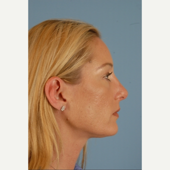 35-44 year old woman treated with Rhinoplasty after 3839746