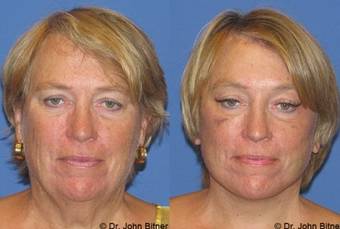 Laser Skin Resurfacing before 1156583