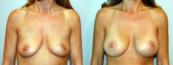 Breast Implants before 1181611