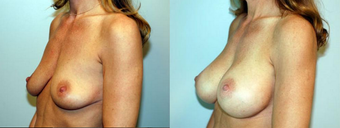 Breast Implants after 1181611