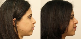 Rhinoplasty without surgery before 1020540