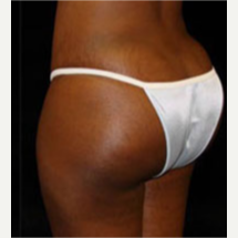25-34 year old woman treated with Brazilian Butt Lift after 3253899