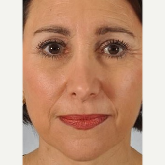 Wrinkle Treatment Before & After Pictures