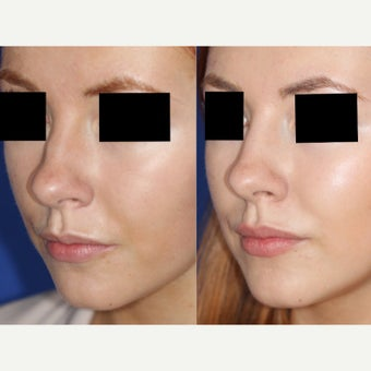20-year old woman treated with Non Surgical Nose Job