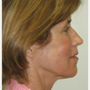 Mature woman not wanting a surgical facelift using combination fillers and lasers after 3137204