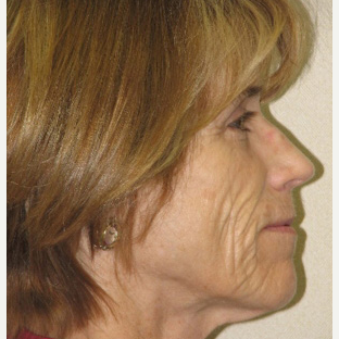 Mature woman not wanting a surgical facelift using combination fillers and lasers before 3137204