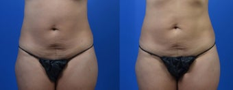 35-44 year old woman treated with SculpSure before 2761971