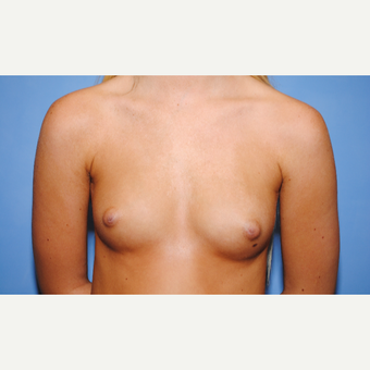 25-34 year old woman treated with Breast Augmentation before 3763091