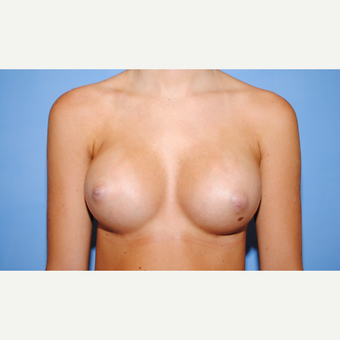 25-34 year old woman treated with Breast Augmentation after 3763091
