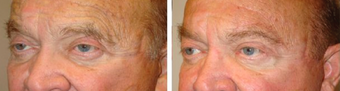 Male Eyebrow Lift before 1167825