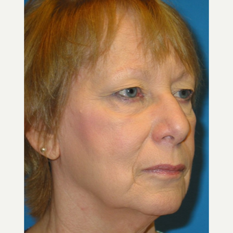 65-74 year old woman treated with Eyelid Surgery before 3570761