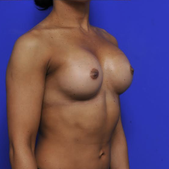 41 year old woman treated with Breast Augmentation after 3840339