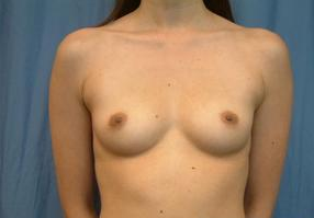 Breast Implants before 1365380
