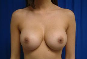 Breast Implants after 1365380