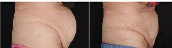 80-year-old woman had CoolSculpting for the protruding fat in the mid section of the abdomen.  before 1088327