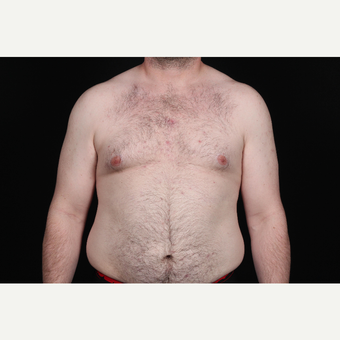45-54 year old man treated with SAFELipo before 3126442