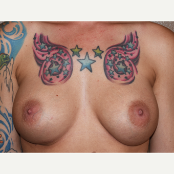 35-44 year old woman treated with Breast Implants after 3022243