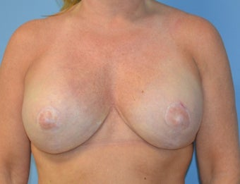 45-54 year old woman after bilateral nipple sparing mastectomy with immediate reconstruction after 1635506