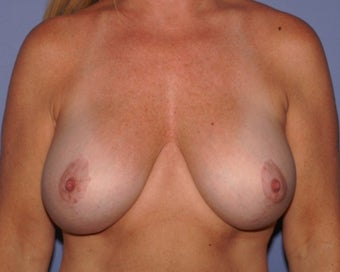 45-54 year old woman after bilateral nipple sparing mastectomy with immediate reconstruction before 1635506