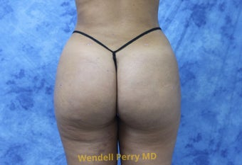 18-24 year old woman treated with Brazilian Butt Lift after 3341073